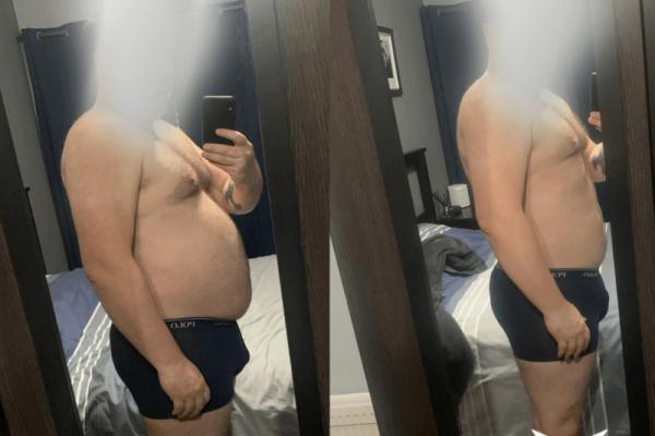 Male client abdominal transformation